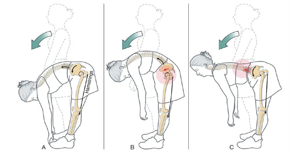 骨盆前傾真的會導致腰痛嗎?